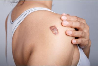 Keloid scar on back of a persons shoulder