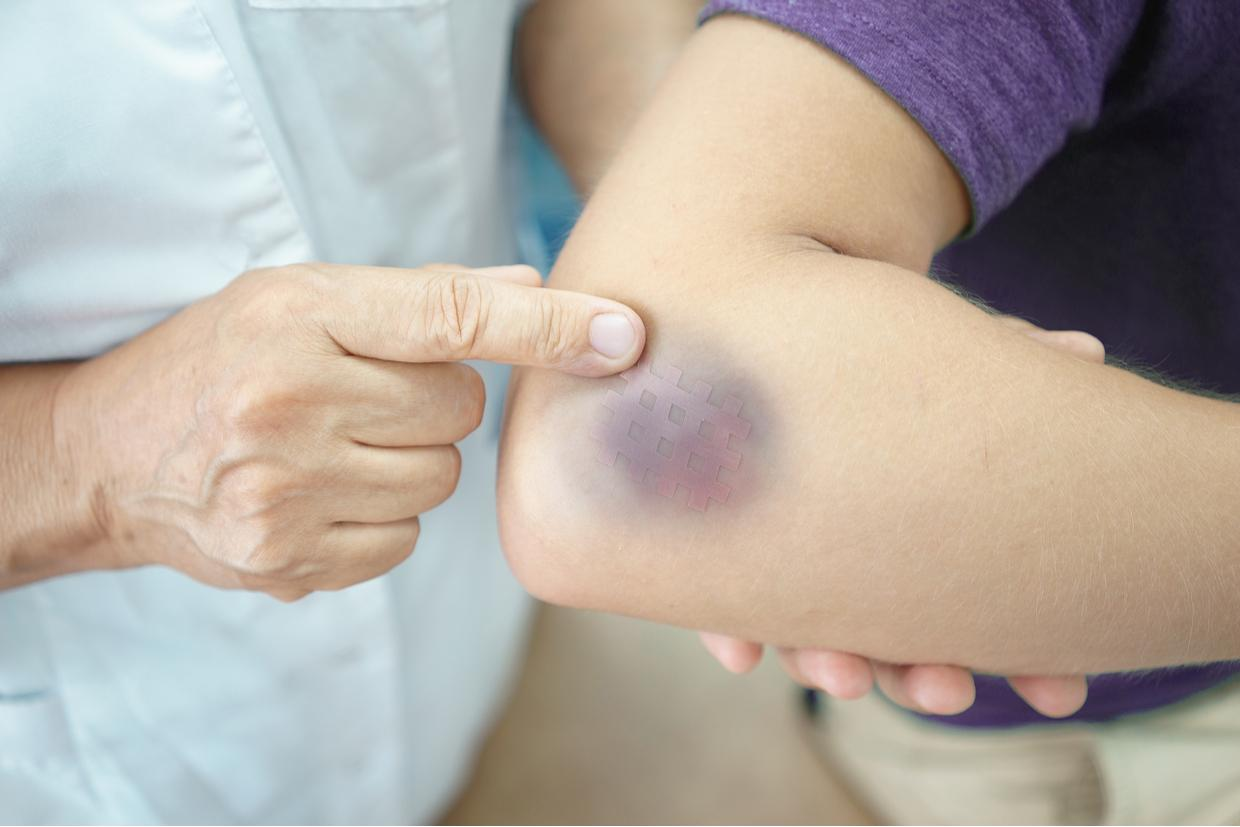 What Are Serious Bruises and How Can I Treat Them?