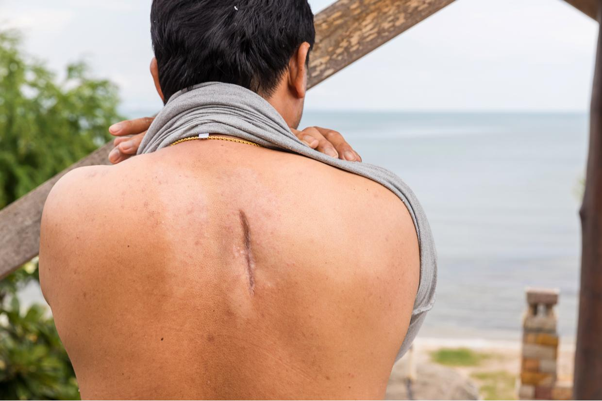 All About Scars: Improve Appearance & Relieve Pain