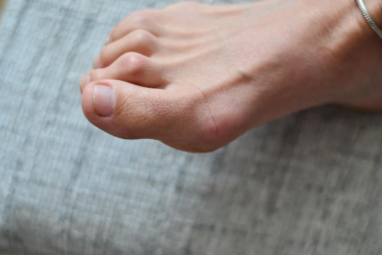 How to Prevent & Treat Hammer Toe