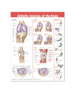 Athletic Injuries of the Knee Chart