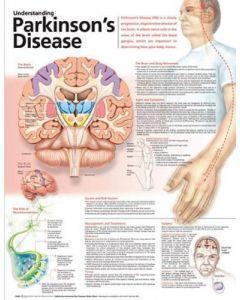 Parkinson's Chart