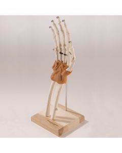 Ultra-Flex Ligamented Hand and Wrist