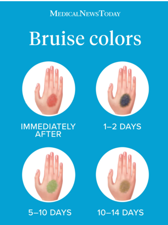 Infographic from Medical News Today with the 4 stages of bruise colors, ranging from immediately after to 10-14 days when the bruise is healing.