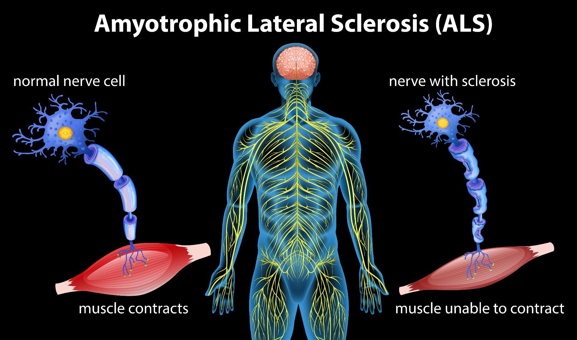 ALS nerve diagram