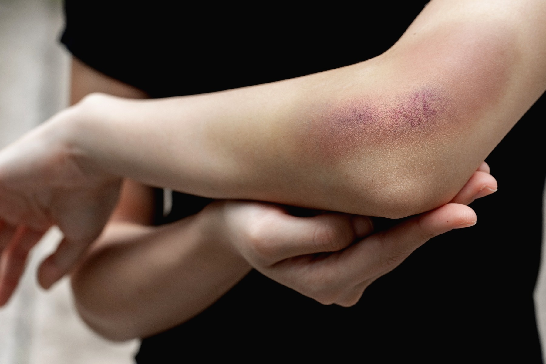 Person holding their arm, with large bruise seen above their elbow