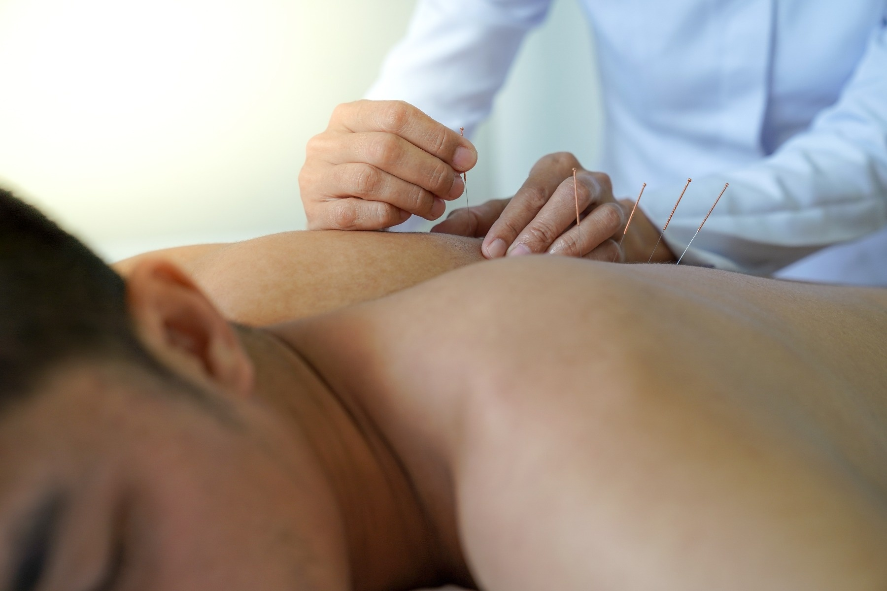 Person laying down on stomach with practioner applying needles to their back to relieve pain
