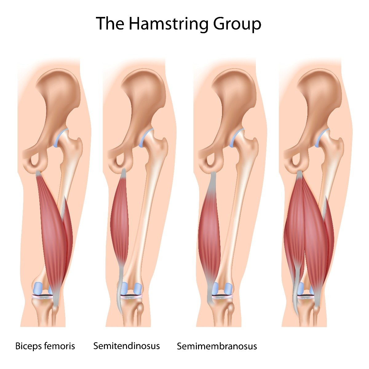 Runners: How to Treat & Prevent Hamstring Pain | Performance Health